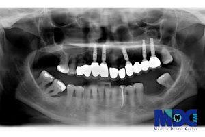 انواع عکس های دندانپزشکی