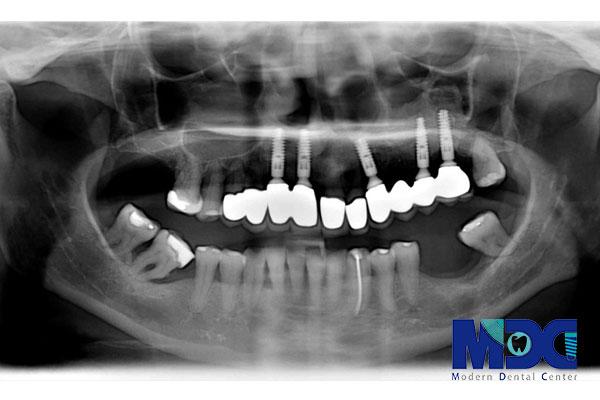 انواع عکس های دندانپزشکی – قسمت سوم