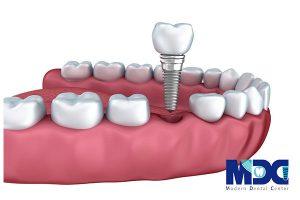 چرا ایمپلنت دندان بهترین روش است؟