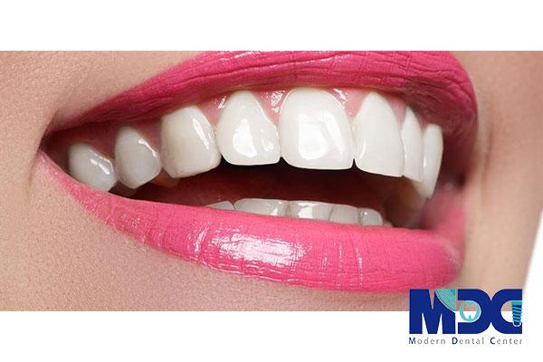 طول عمر لمینت دندان چقدر است؟