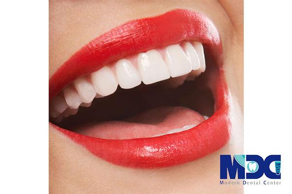 لمینت بدون تراش دندان یا لومینیرز دندان چیست؟