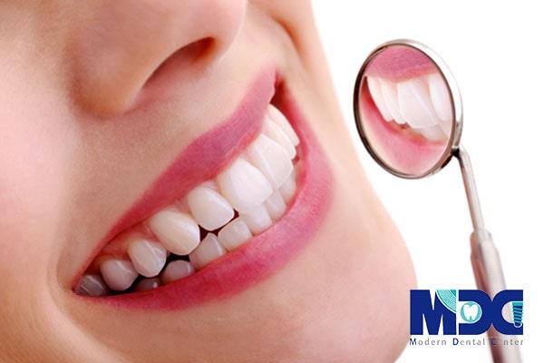 مراحل نصب لمینت دندان