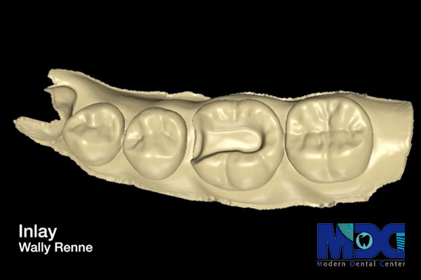 ترمیم دندان به روش اینلی