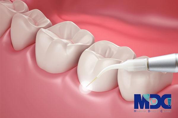 لیزرتراپی در دندانپزشکی