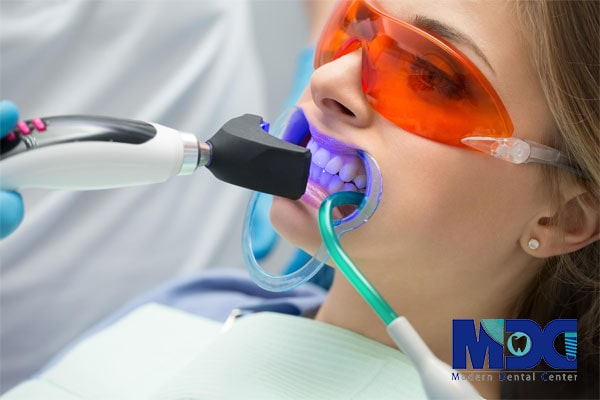 نحوه انجام ونیر کامپوزیت دندان