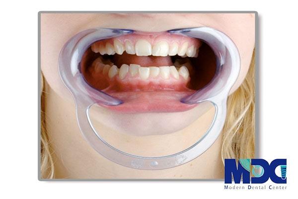 رترکتور دندانپزشکی
