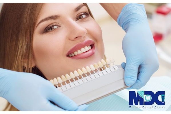 انواع رنگ کامپوزیت دندان در کلینیک دندانپزشکی مدرن