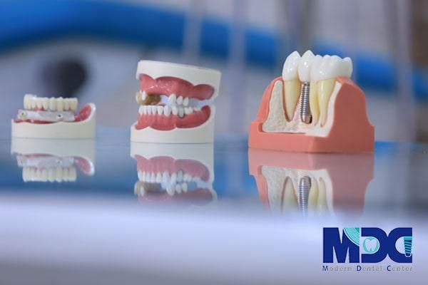 کست های دندانی