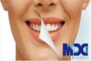 تفاوت لمینیت دندان با بلیچینگ چیست؟