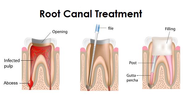 ترمیم دندان اندو شده( درمان ریشه )!