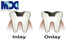 ترمیم تخصصی دندان!