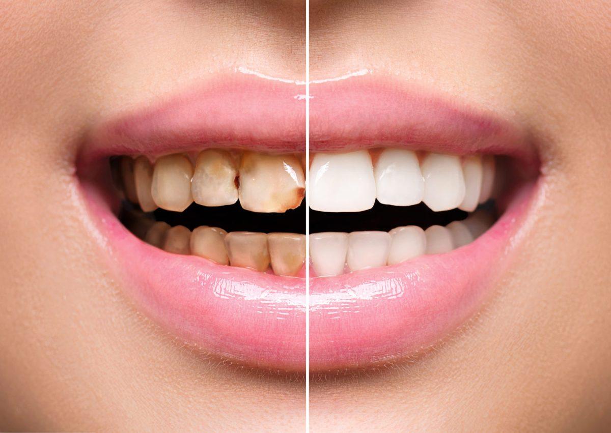 مزایا لمینیت دندان – خدمات زیبایی دندان – کلینیک دندانپزشکی مدرن