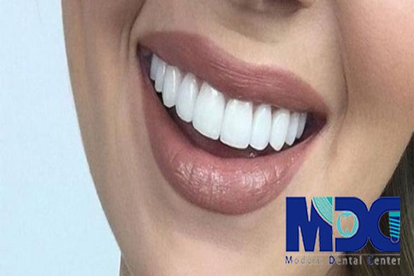کامپوزیت ونیر-کلینیک دندانپزشکی مدرن