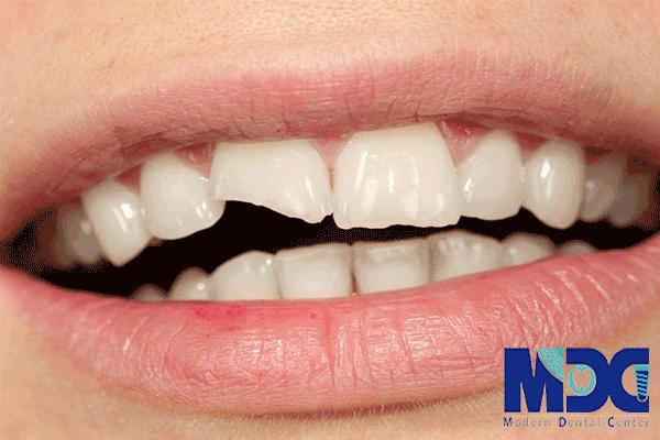 شکستگی دندان!