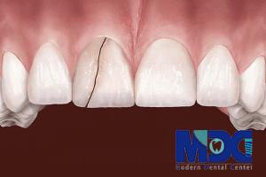 ترمیم دندان جلویی-کلینیک دندانپزشکی مدرن