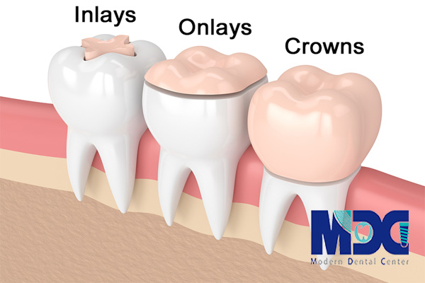 اینلی انلی دندانی- کلینیک دندانپزشکی مدرن