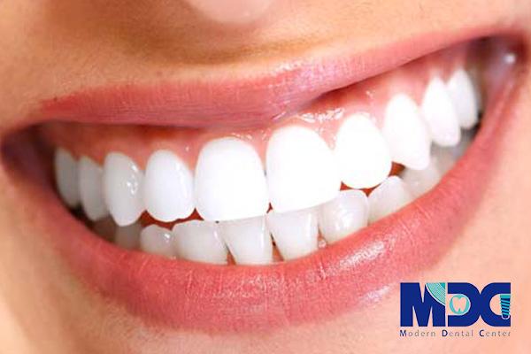 لمینت سرامیکی - کلینیک دندانپزشکی مدرن