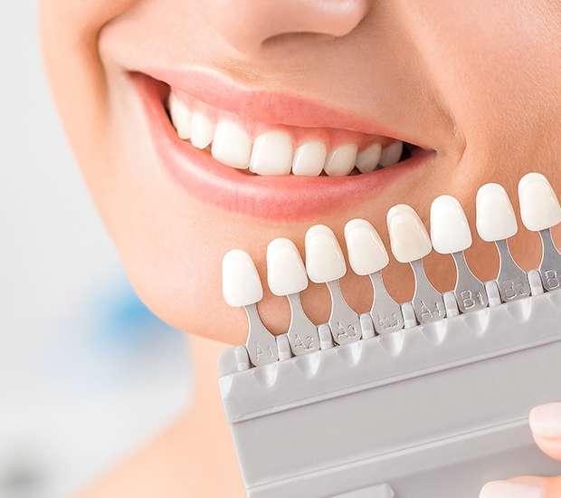 کامپوزیت دندان-کلینیک دندانپزشکی مدرن