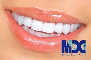 لمینیت دندان-کلینیک دندانپزشکی مدرن