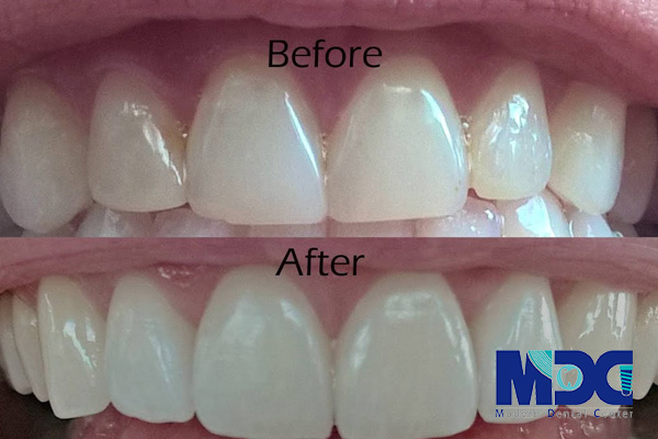 لمینت دندان - کلینیک دندانپزشکی مدرن