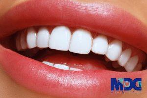 مراقبت های بعد از درمان لمینیت - کلینیک دندانپزشکی مدرن