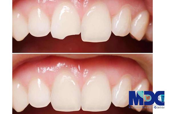 بلندی دندان ترمیم شده - کلینیک دندانپزشکی مدرن