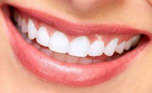 معایب لمینت دندان چیست؟ عمر لمینت دندان چقدر است؟