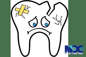 ریختن دیواره دندان پر شده_کلینیک دندانپزشکی مدرن