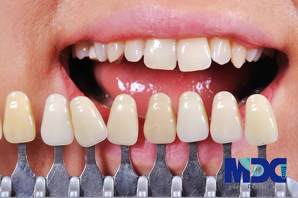 رنگ روکش دندان - کلینیک دندانپزشکی مدرن