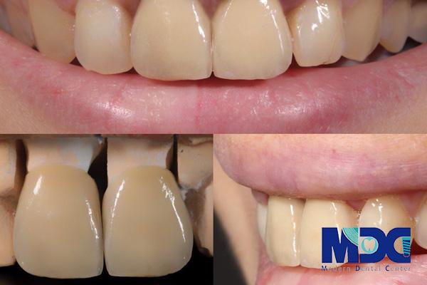 طول عمر روکش دندان - کلیکنیک دندانپزشکی مدرن