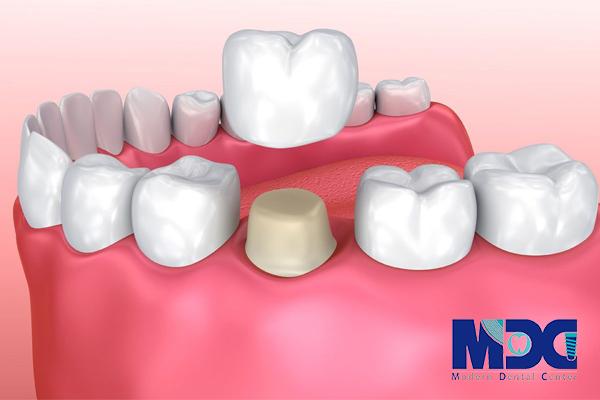 روکش دندان و انواع آن - کلینیک دندانپزشکی مدرن
