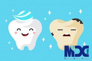 ترمیم پوسیدگی دندان!