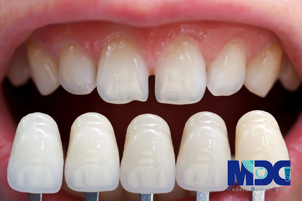 اسنپ آن اسمایل - کلینیک دندانپزشکی مدرن