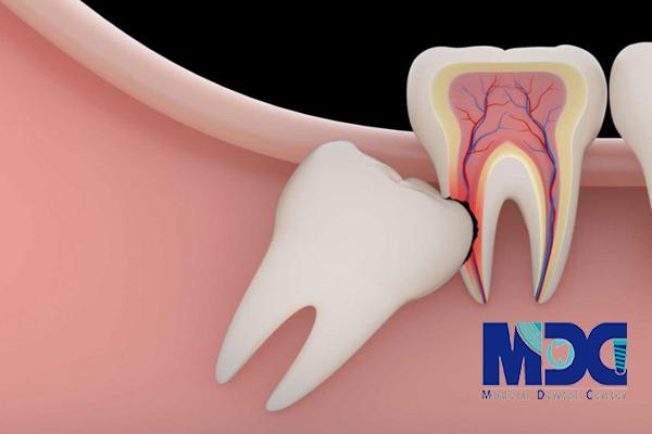 دندان عقل-کلینیک دندانپزشکی مدرن