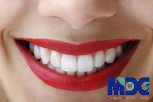 مراحل انجام ونیر کامپوزیت دندان!