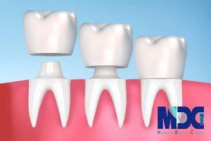 انواع روکش های دندانی!