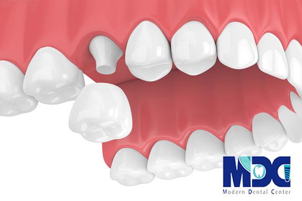 روکش دندان-کلینیک دندانپزشکی مدرن