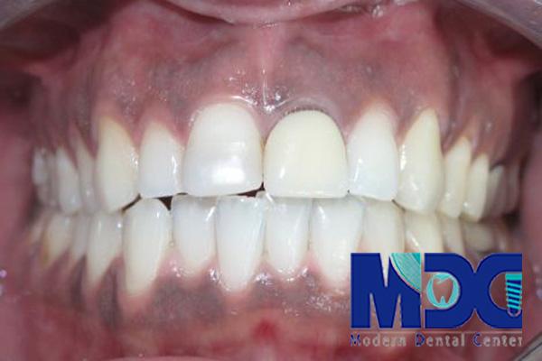 لثه سیاه-کلینیک دندانپزشکی مدرن