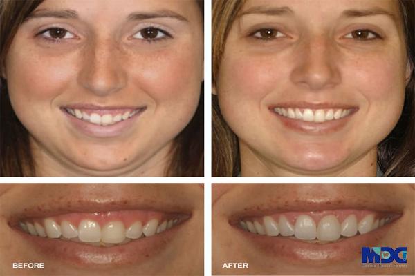 لبخند لثه ای در اثر کوچک بودن دندان ها- کلینیک دندانپزشکی مدرن