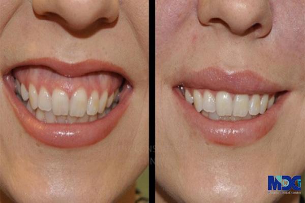 اصلاح لبخند لثه ای- کلینیک دندانپزشکی مدرن