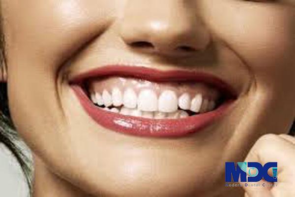 لبخند لثه ای-کلینیک دندانپزشکی مدرن