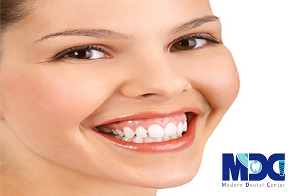 لبخند لثه ای چیست؟ بررسی علل و راه های درمان لبخند لثه ای.