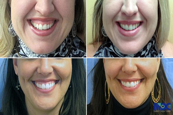 لبخند لثه ای بر اثر باریک بودن لب- کلینیک دندانپزشکی مدزن