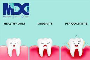 درد لثه دندان و نحوه درمان آن!