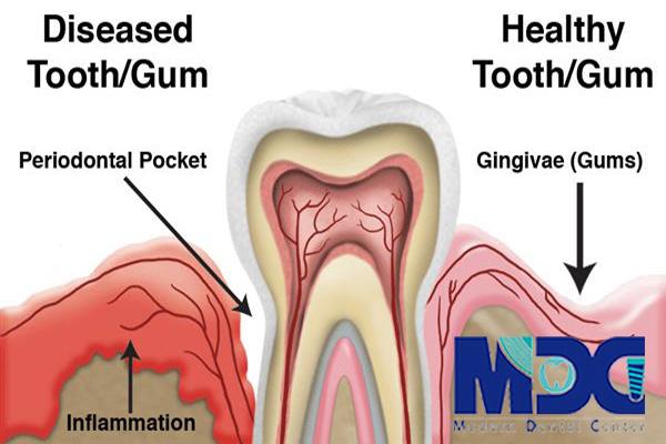 پاکت پریودنتال- کلینیک دندانپزشکی مدرن