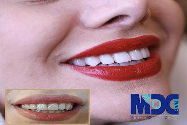 ونیر کامپوزیت دندان - کلینیک دندانپزشکی مدرن