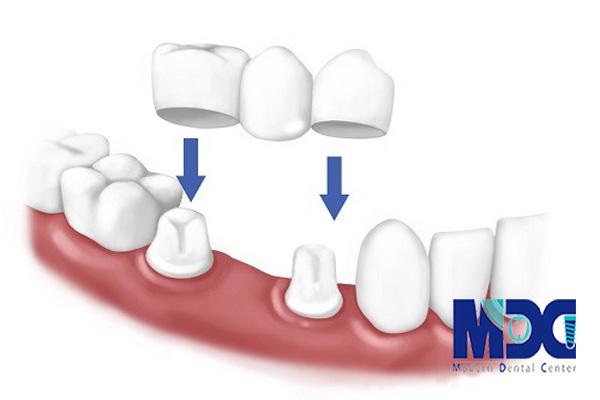 بریج دندان | انواع بریج دندان