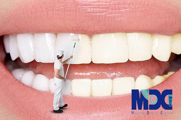 عوارض-عفونت-لثه-کلینیک-دندانپزشکی-مدرن