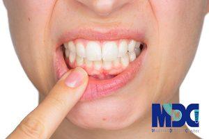 عوارض- عفونت-لثه-کلینیک-دندانپزشکی-مدرن
