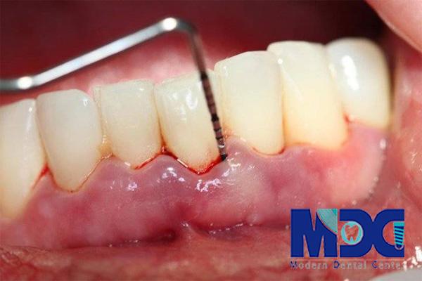 التهاب لثه- کلینیک دندانپزشکی مدرن
